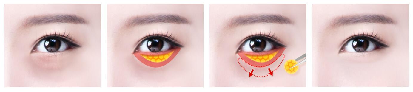 Under eye fat repositioning to remove eye bags | Hyundai ...